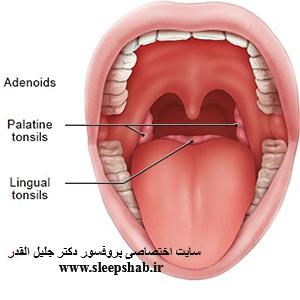 بررسی آپنه ي انسدادي هنگام خواب قبل و بعد از عمل جراحی آدنوتونسیلکتومی در کودکان مراجعه کننده به بیمارستان قدس قزوین